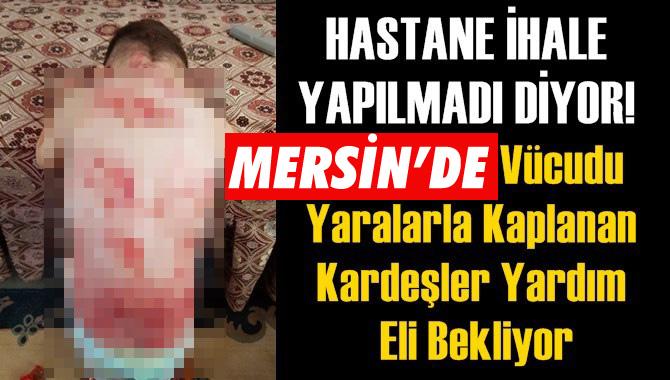 Mersin'de Vücudu Yaralarla Kaplanan Kardeşler Yardım Eli Bekliyor