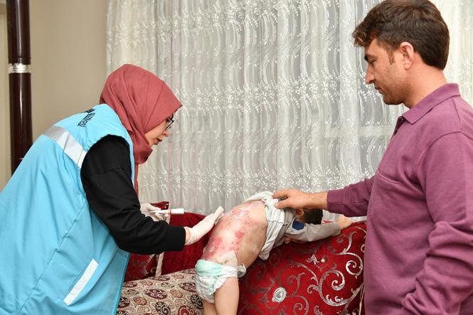 Kelebek Hastalığı (Epidermolozis Bülloza) İle Mücadele Eden Mehmetcan ve Yağmur'a Yardım Eli