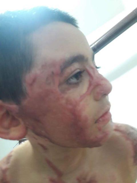 Mersin'de Küçük Cumali Umut Eşitmez'in Tedavisi İçin 255 Bin Lira Gerekiyor