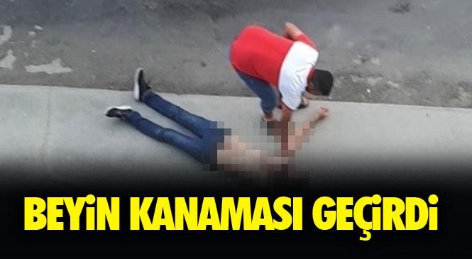 Mersin Tarsus'ta Saldırıya Uğrayan Genç Beyin Kanaması Geçirdi! Yüzüne Daha Sonra Düştüğü Yerde Başına Darbe Almıştı!